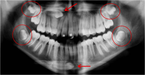 Radiografia mostrando 3º Molares