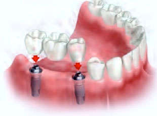 Prótese múltipla sobre implantes (ponte fixa)