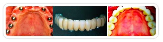 Reabilitação total com implantes (arcada total)