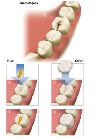 Odontologia Cosmética