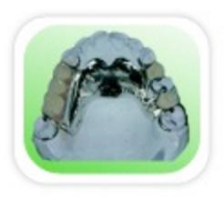 Prótese Parcial: São aparelhos removíveis combinados em resina com armação metálica indicados em casos de ausências parciais de dentes.