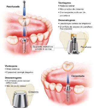 Prótese unitária sobre implante
