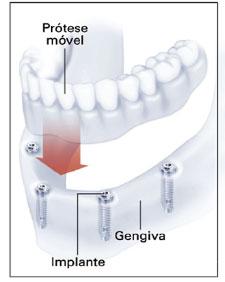 Prótese múltipla sobre implante