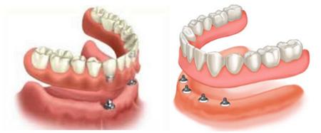 Overdentures ou dentaduras sobre implantes